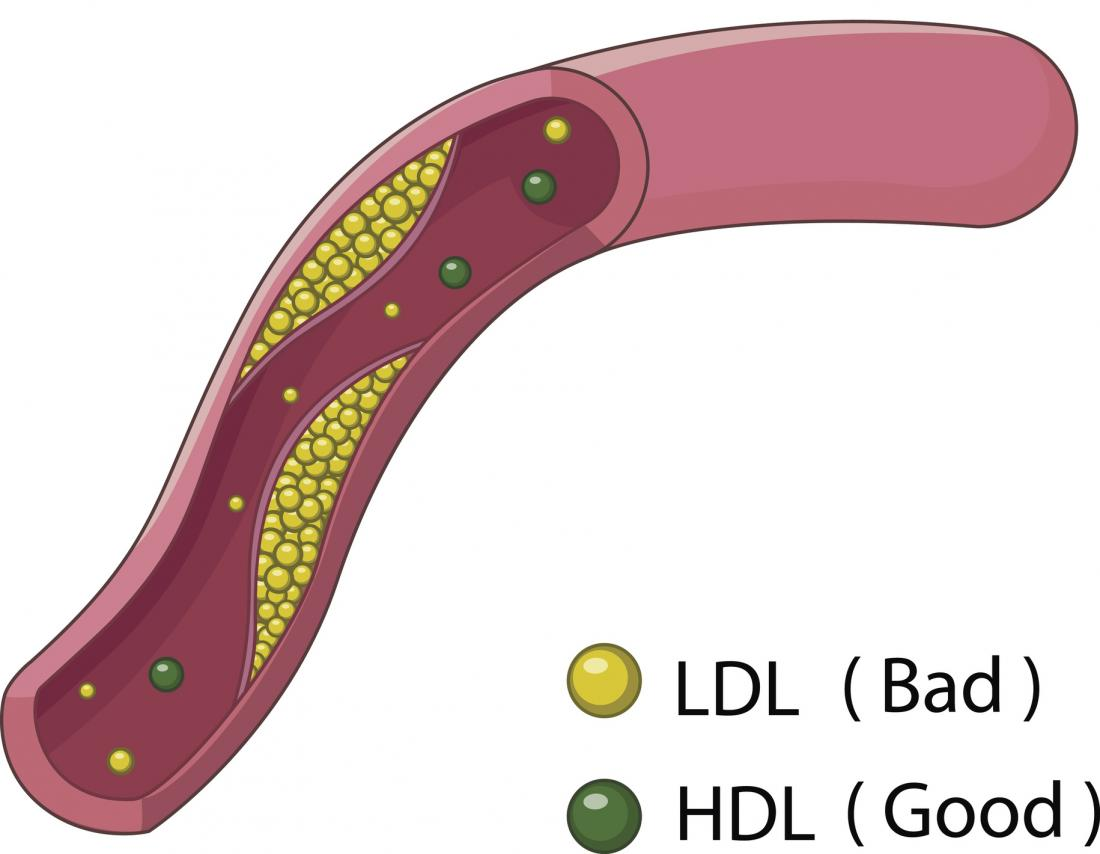 illustration-of-ldl-and-hdl